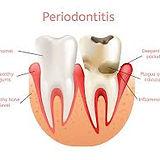 periodontics.jfif