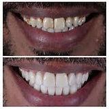 tooth bonding.jfif