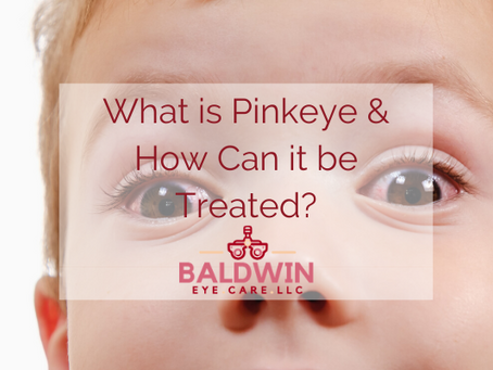 What is Pinkeye and How Can it be Treated?