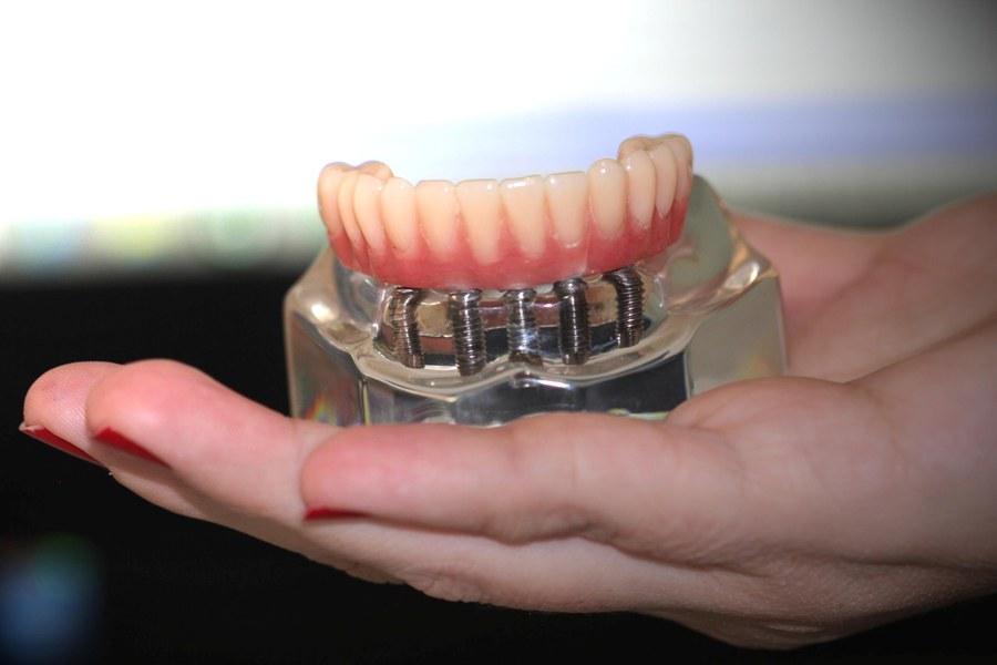 Peça de implante total