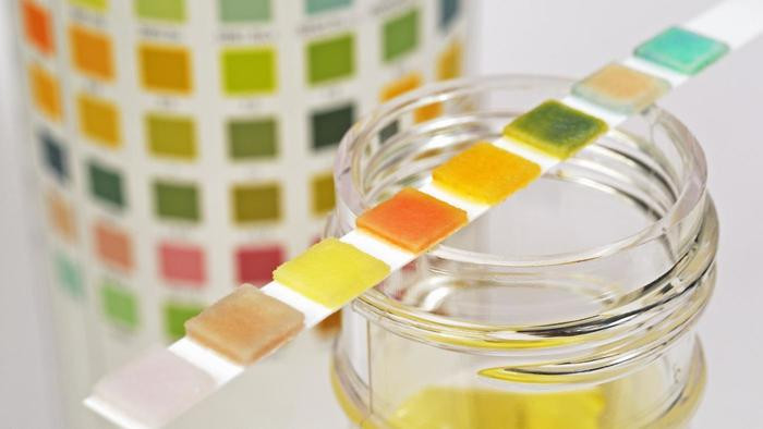 Urine Markers for Interstitial Cystitis