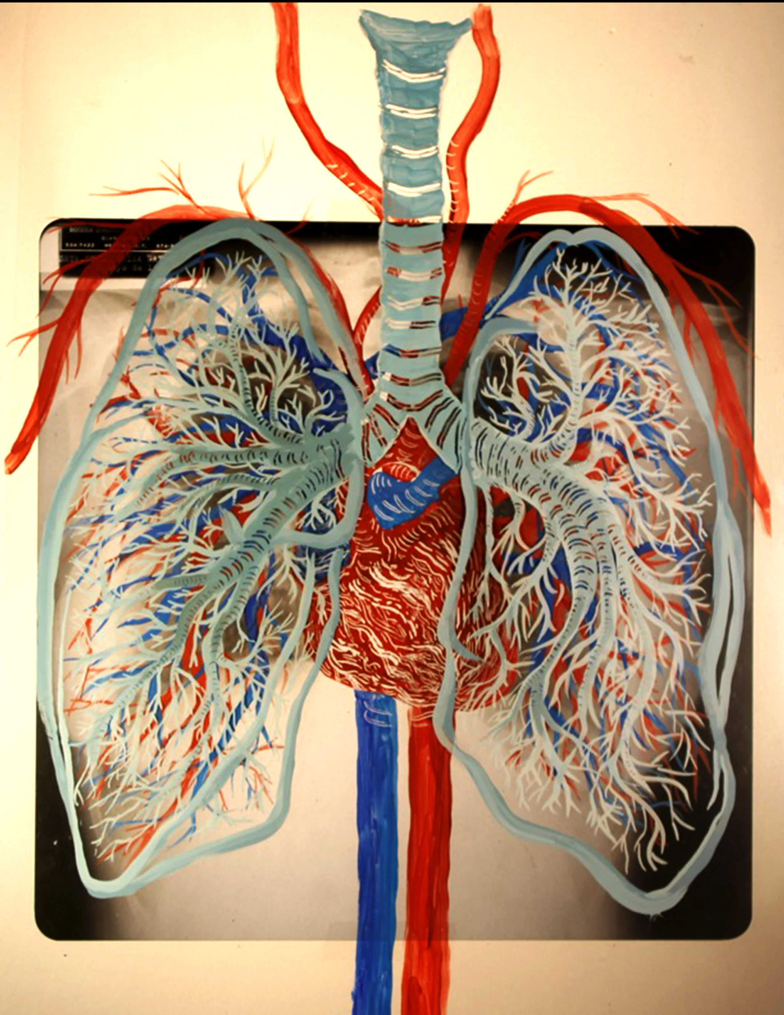 Corazón y pulmón