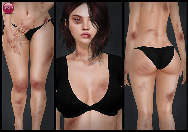 Bruises set from Izzie.jpg