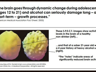 Alcohol and the Teen Brain