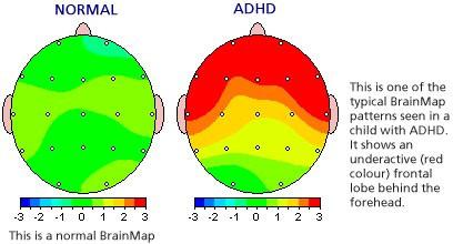 brainmaps2.jpg