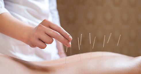 acupuntura-para-tratamento-de-coluna.jpg