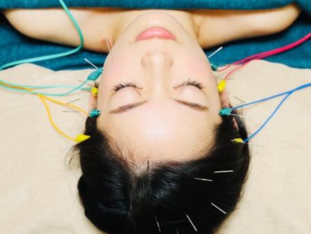 電気付き小顔美容鍼でお顔の筋肉を活性化