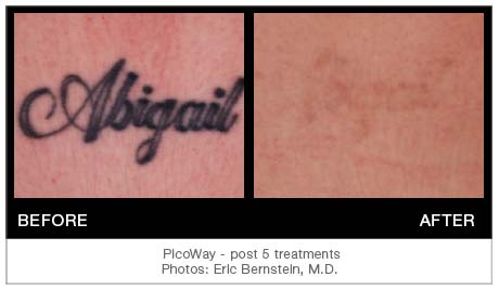 Picoway tattoo removal Fort Lauderda