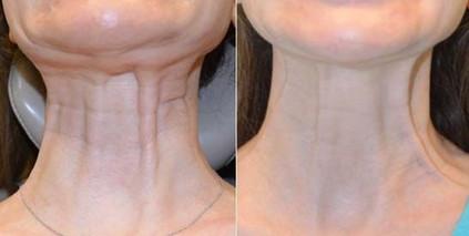neckbands_edited.jpg