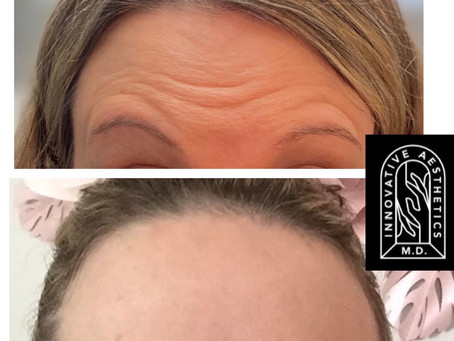 10 Techniques for Achieving Awesome Level Botox