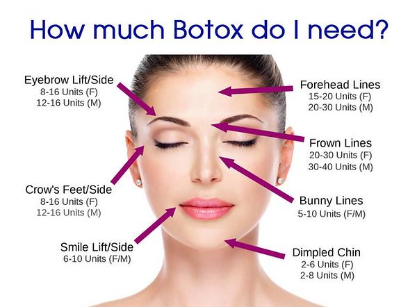 Botox Near Me.png