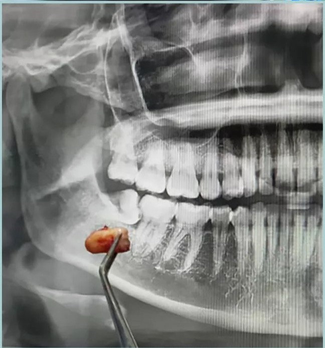 Minor Oral Surgery (Wisdom tooth)