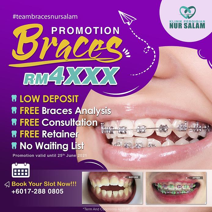 Promo-Braces-KPNS-MEI21-1250.png