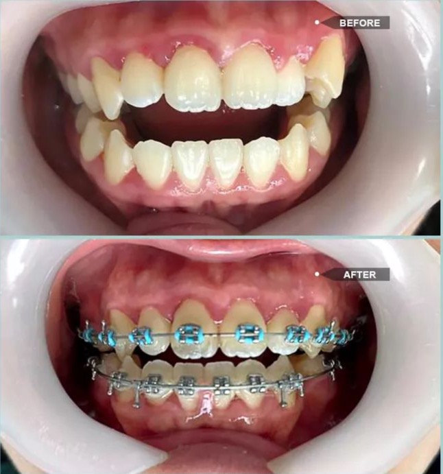 Braces/Orthodontics