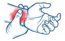 hand injuries.jpg