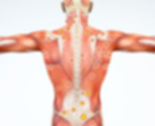 myofascial_pain_syndrome_trigger_points_