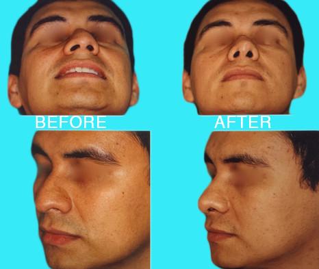 Rhinoplasty dorsal reduction and tip ref