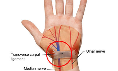 carpal-tunnel-syndrome-what-is-it.jpg