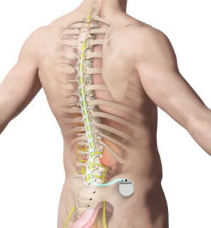 spinal-cord-stimulation.jpg