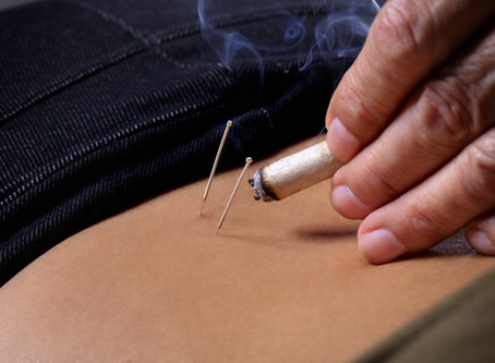 Treating PCOS with Acupuncture