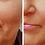 Thumbnail: Luz Pulsada | Clínica Estética BeautySkin