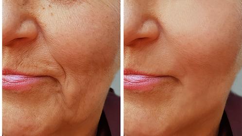 Luz Pulsada | Clínica Estética BeautySkin