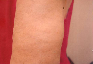 Psoríase Tratada Com Curcumina