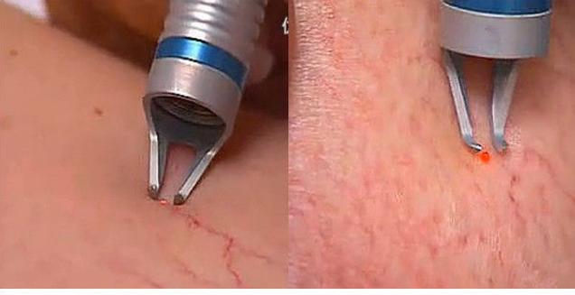 laser vascular2 (1).png