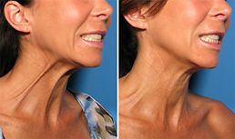 neck botox.jpg