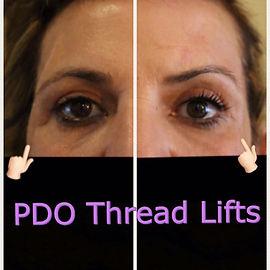 PDO eye.jpg