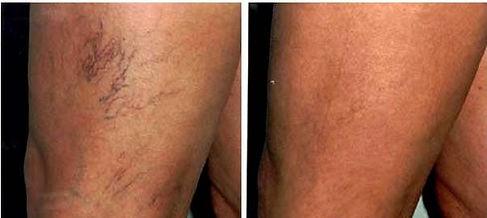 laser vascular5.jpg