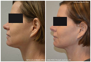 PDO-Thread-Necklift-6-wk-results-1024x70