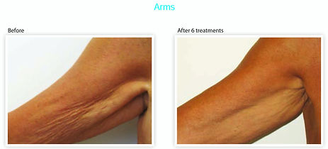 thermage-Arms-before-and-after-jpg.jpg
