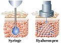 hyaluron pen vs syrenge.jpg