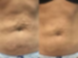 PDO stomach.png