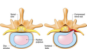 Disc Herniations: What are they and How to manage them.