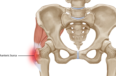 Pain on the outside of your hip? It's most likely to be GTPS.