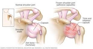 What is a Frozen shoulder?