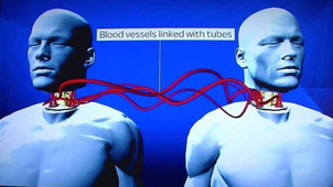First Head Transplant Surgery on a Human set for December 2017.
