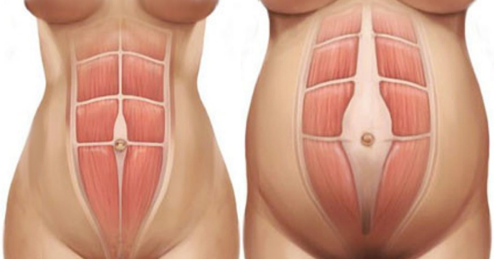 diastaza rektusov nosečnost po porodu