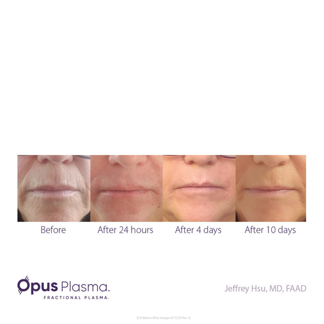 Opus-Before_and_After-B2C-8.jpg