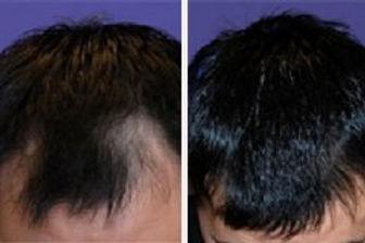 prp for hair.jpg