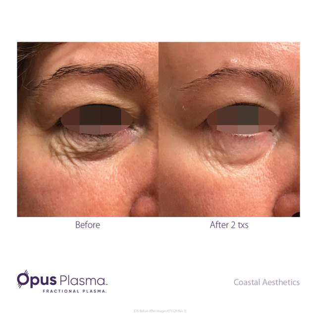 Opus-Before_and_After-B2C-14.jpg