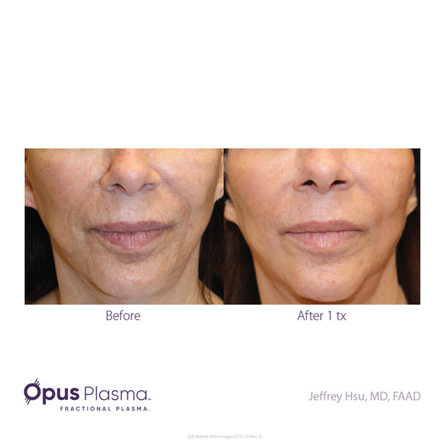 Opus-Before_and_After-B2C-7.jpg