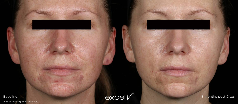 excel-V_532_Vascular_1.jpg