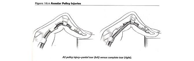 injury-a2-finger-anatomy-2.jpg