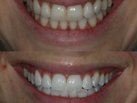 White is definitely your color!  Now that your teeth are whiter help them stay that way!
