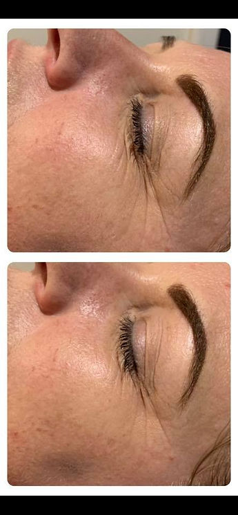 reguv ipl before and after.jpg
