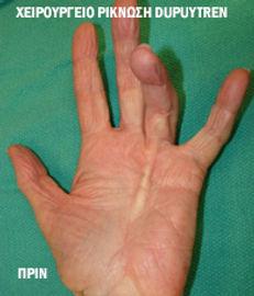 Χειρουργείο Χέρι , Νόσος Dupuytren