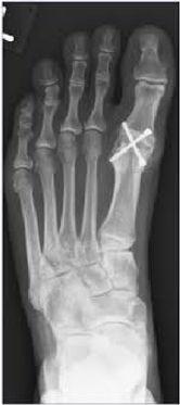χειρουργείο μεγάλο δακτυλο ποδιού